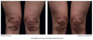 0459-ThermageCPT_HiRes_knees