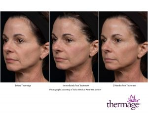 0693 ThermageCTP_TotalTip_Immed 2Month_HiResFace
