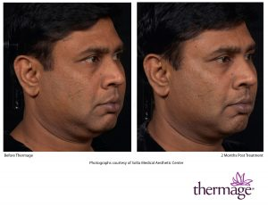 Thermage Before After SMAC_12